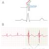 Εμφύτευση συσκευής CCM (cardiaccontractilitymodulator) - ενός ρυθμιστή καρδιακής συσταλτικότητας